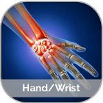 X-ray image of a hand and wrist