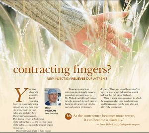 Dr. Wolock treats Dupuytren's contracture using varying techniques.