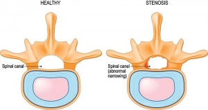 Illustration of a healthy spinal canal vs a spinal canal effected by lumbar spinal stenosis