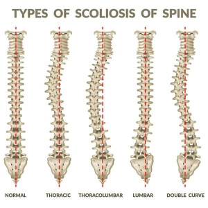 3d illustration of effects of 5 types of scoliosis