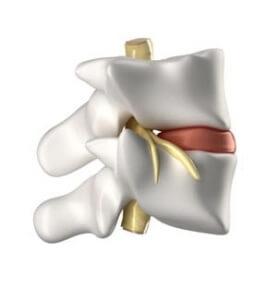 Image showing the anatomy of a vertebral segment