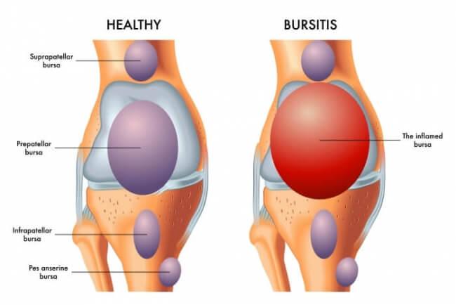 Bursitis vs healthy knee